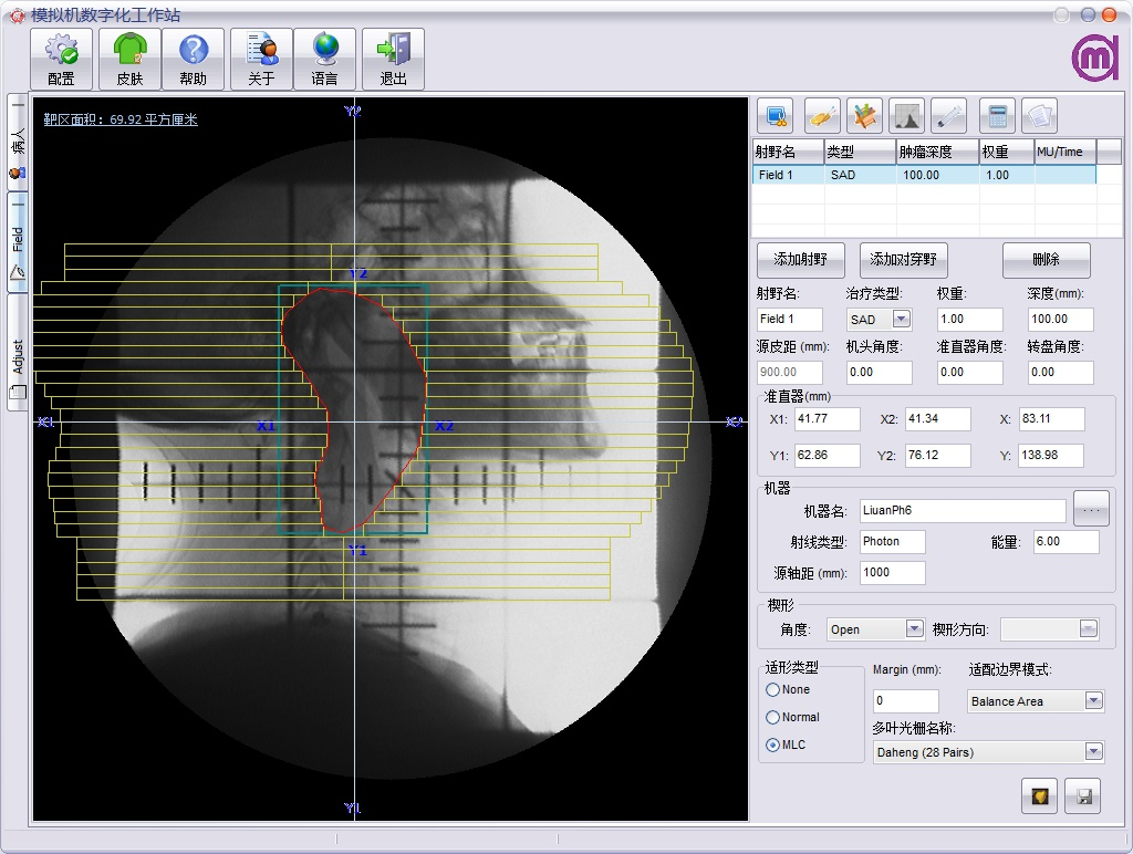 囹�a_放疗模拟机工作站软件simws